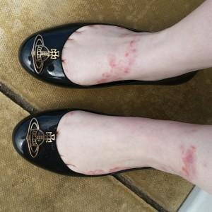 Eczema Feet With Shoes