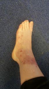 Left Foot Today