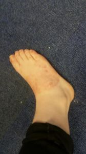 Right Foot Today